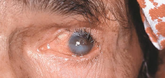 Abnormal Eyelashes Trichiasis