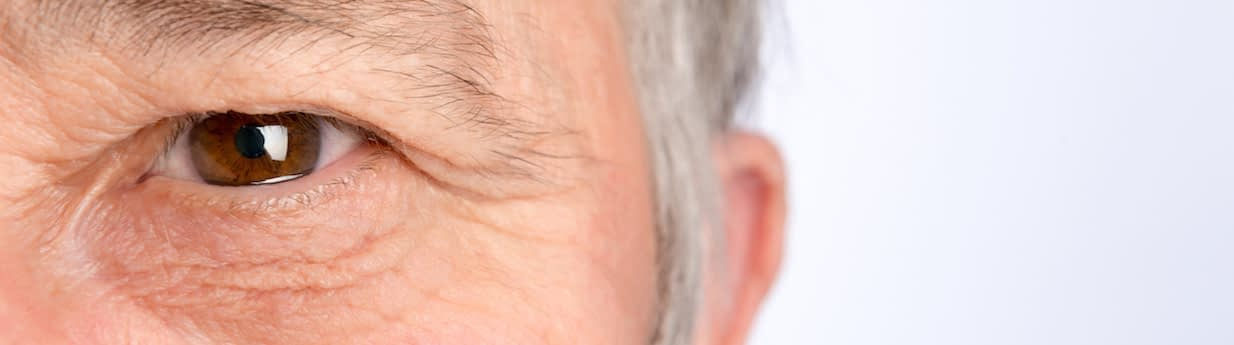 Revision Eyelid Reduction Surgery