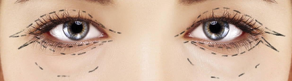 Functional Eye Surgery London