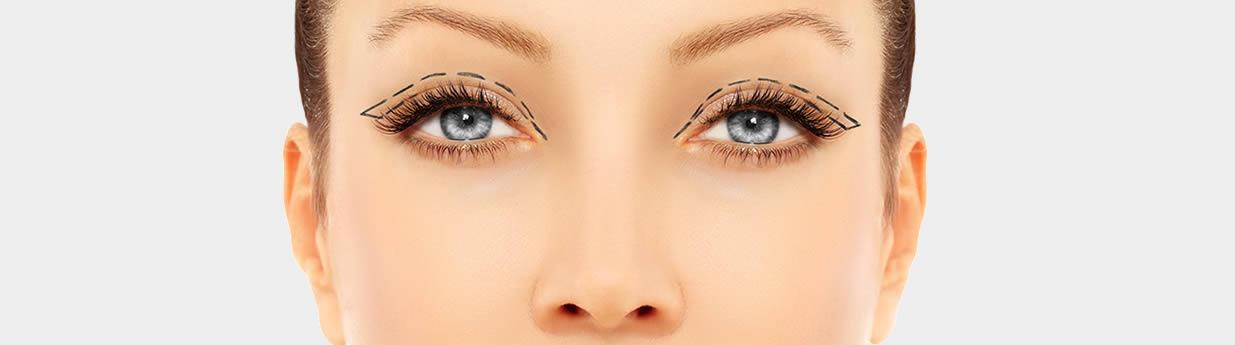Ptosis Repair( Droopy Eyelid Lifting Surgery)
