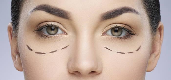 Eye Bag Surgery London