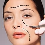 Returning the Youthful Fullness to the Cheeks — the Midface Lift