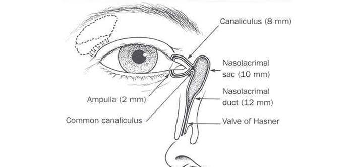 dacryocystorhinostomy watery eye london