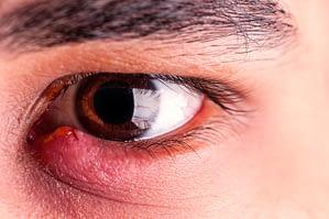 Blepharitis London W1G